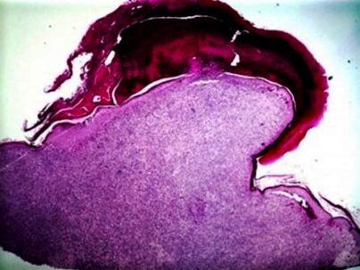 leiomyosarcoma-face-fig-1