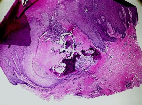 osteoma_fig1