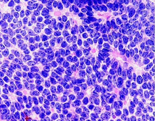 Trichoblastoma – Dr Sarma's Dermpath & other Pathology topics  Trichoblastoma ...