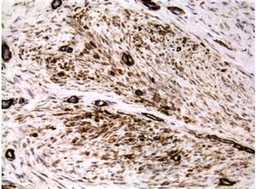 sma-immunostain-fig-4-jpg