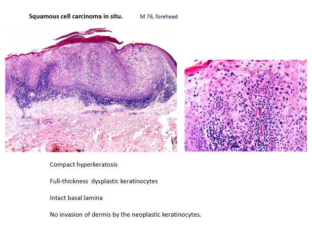 Squamous cell carcinoma of the skin: Review – Dr Sarma's