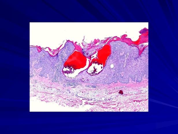 88810861-Angiokeratomatous-seborrheic-keratosis-Se_002