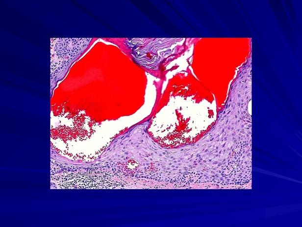 88810861-Angiokeratomatous-seborrheic-keratosis-Se_004.jpg