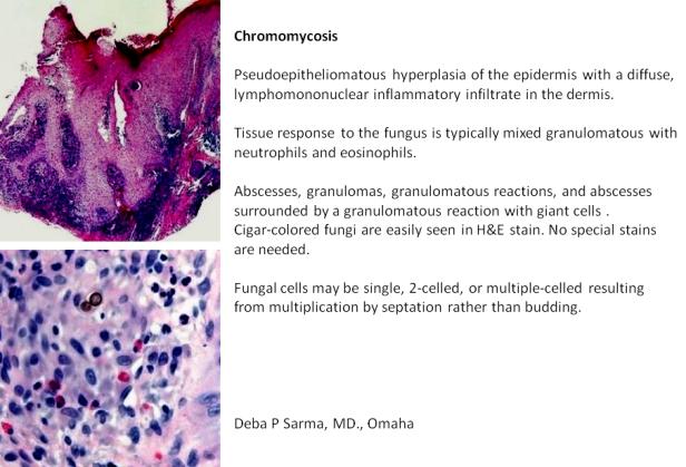 Chromomycosis.png