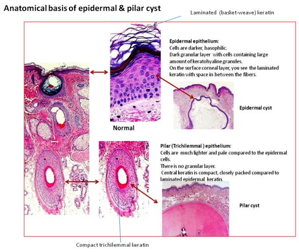 Anatomical basis for epidermal and pilar cyst – Dr Sarma\'s Dermpath ...