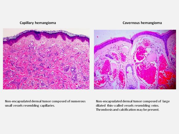 Hemangioma 3.PNG