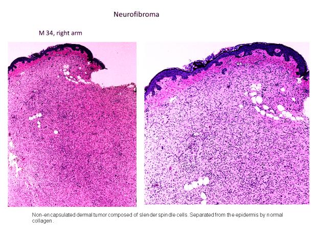 Neurofibroma 1.PNG