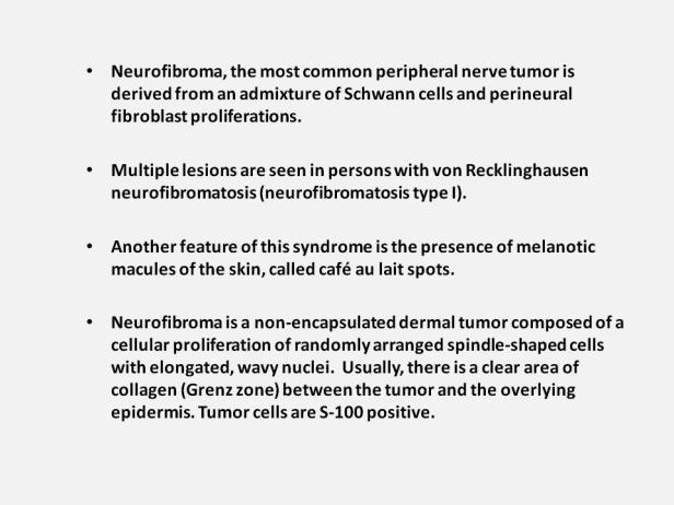Neurofibroma 3
