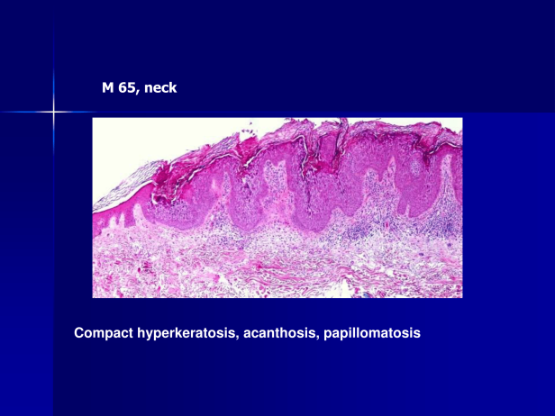 Acantholytic acanthoma (Epidermolytic acanthoma),M 65, neck-2.png