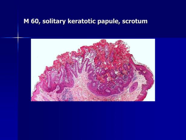 Acantholytic acanthoma. M 60, scrotum-2.png