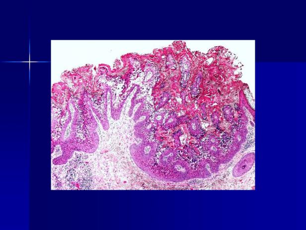 Acantholytic acanthoma. M 60, scrotum-3.png