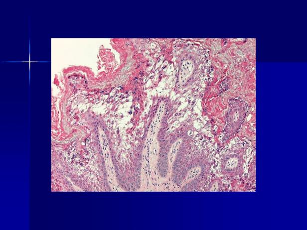 Acantholytic acanthoma. M 60, scrotum-6.png