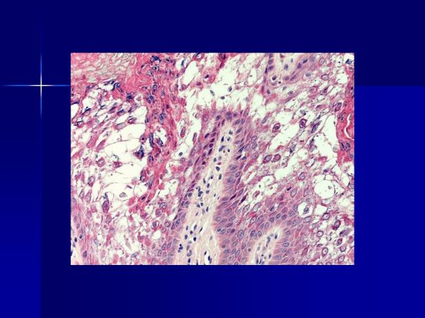 Acantholytic acanthoma. M 60, scrotum-7