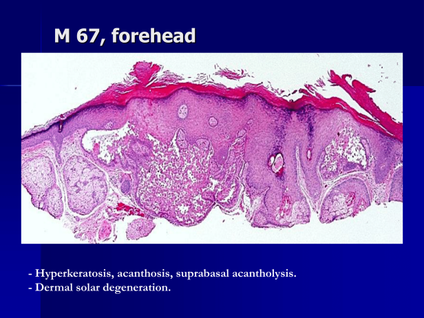 Acantholytic actinic keratosis, M 67, forehead-2.png