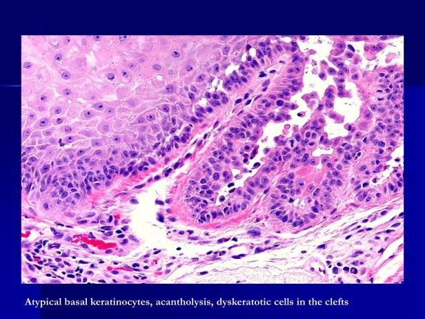 Acantholytic actinic keratosis, M 67, forehead-4