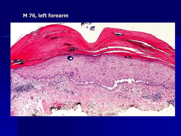 Acantholytic actinic keratosis, M 76, left forearm-2.png