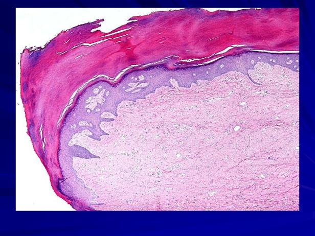 Acral fibrokeratoma-2.png