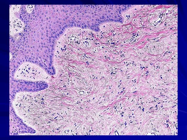 Acral fibrokeratoma-3.png