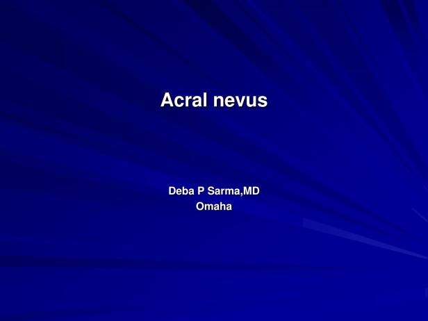 Acral nevus-1