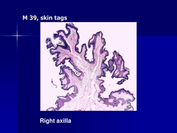 Acrochordon., M 39, Rt and Lt Axillae and Rt arm. PPT-2.png