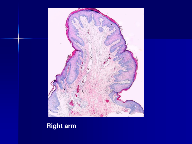 Acrochordon., M 39, Rt and Lt Axillae and Rt arm. PPT-3.png
