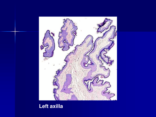 Acrochordon., M 39, Rt and Lt Axillae and Rt arm. PPT-4.png