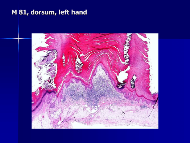 Actinic keratosis (Hypertrophic actinic keratosis) with cutaneous horn .M 81, left hand. PPT-2.png