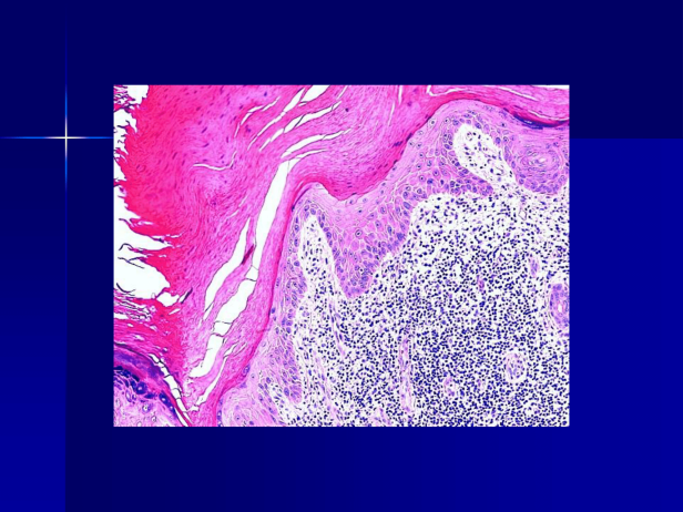 Actinic keratosis (Hypertrophic actinic keratosis) with cutaneous horn .M 81, left hand. PPT-3