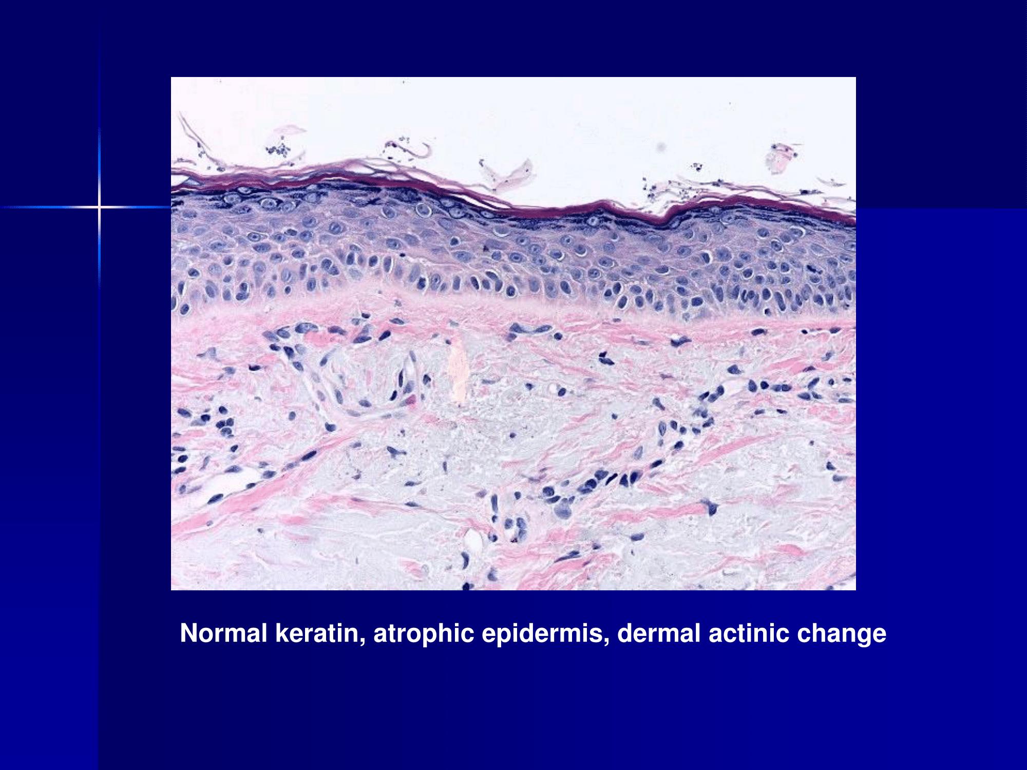 Actinic keratosis (Solar keratosis) – Dr Sarma's Dermpath