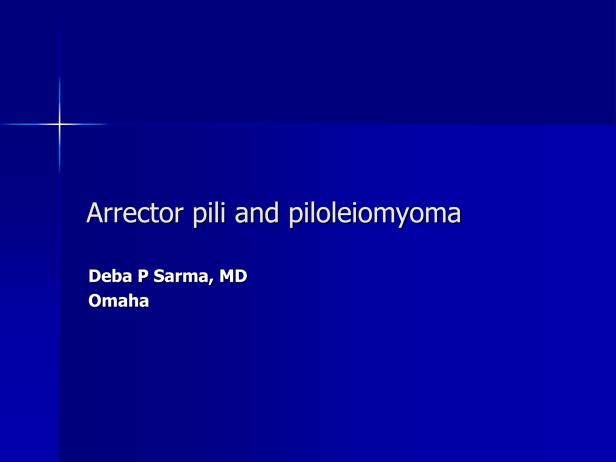 Arrector pili and piloleiomyoma.,PPT-1