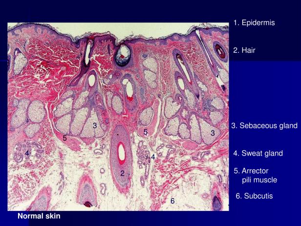 Arrector pili and piloleiomyoma.,PPT-2.png