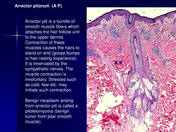 Arrector pili and piloleiomyoma.,PPT-3.png