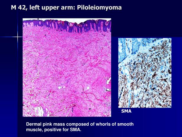 Arrector pili and piloleiomyoma.,PPT-5.png