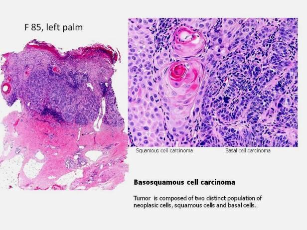 Basosquamous cell CA