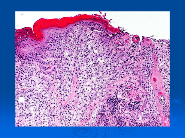 Clear cell squamous cell carcinoma (Squamous cell carcinoma, clear cell type)-03.png