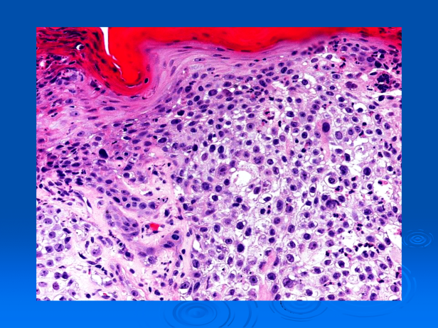 Clear cell squamous cell carcinoma (Squamous cell carcinoma, clear cell type)-04.png