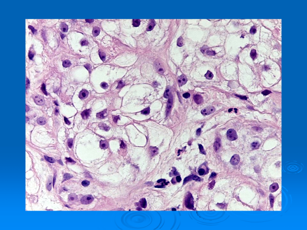 Clear cell squamous cell carcinoma (Squamous cell carcinoma, clear cell type)-06.png