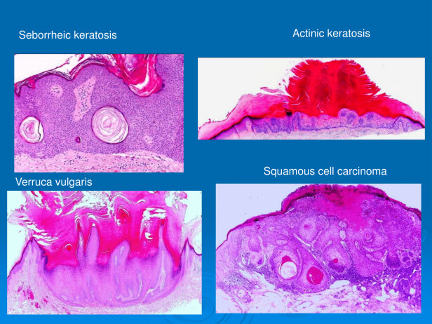 Dr. Sarma's guide to mastering confident diagnosis of seborrheic keratosis, verruca vulgaris, actinic keratosis and squamous cell carcinoma. PPT-2.png