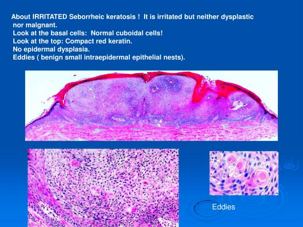 Dr. Sarma's guide to mastering confident diagnosis of seborrheic keratosis, verruca vulgaris, actinic keratosis and squamous cell carcinoma. PPT-7