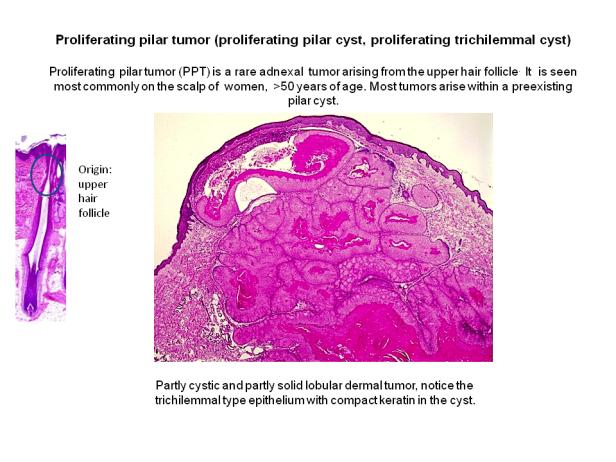 Proliferating pilar tumor (proliferating pilar cyst)
