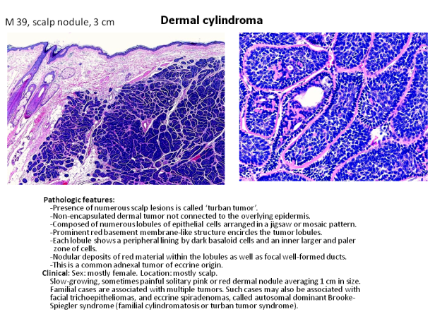 Quick diagnosis. Cylindroma