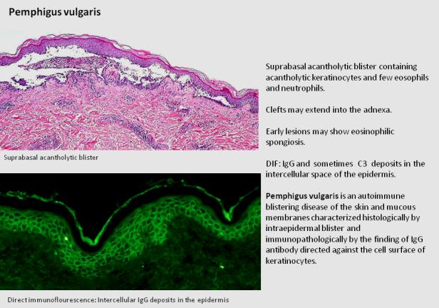 Quick diagnosis. Pemphigus vulgaris.png