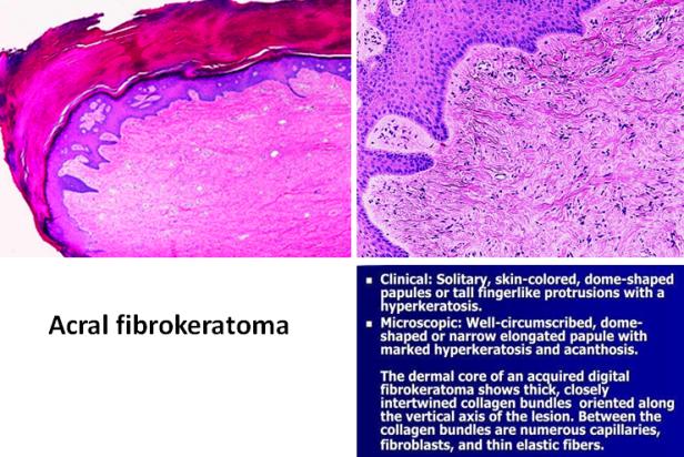 Quick dx. Acral fibrokeratoma