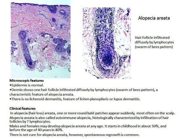 Quick dx. Alopecia areata