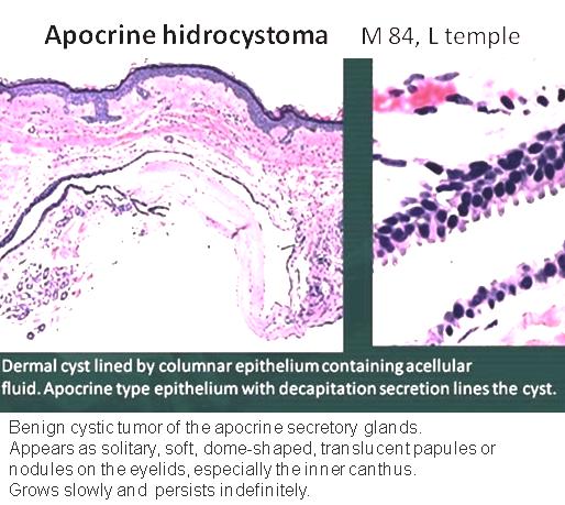 Quick dx. Apocrine hidrocystoma