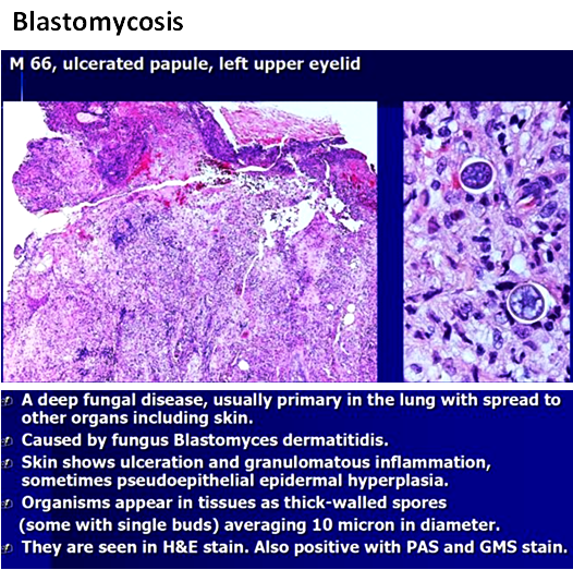 Quick dx. Blastomycosis.png