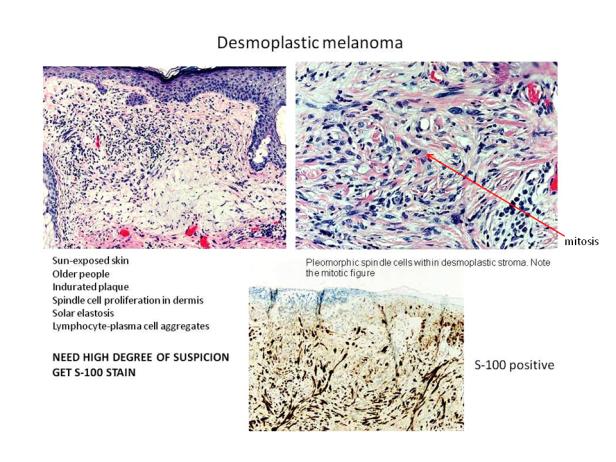 Quick dx. Desmoplastic melanoma.png