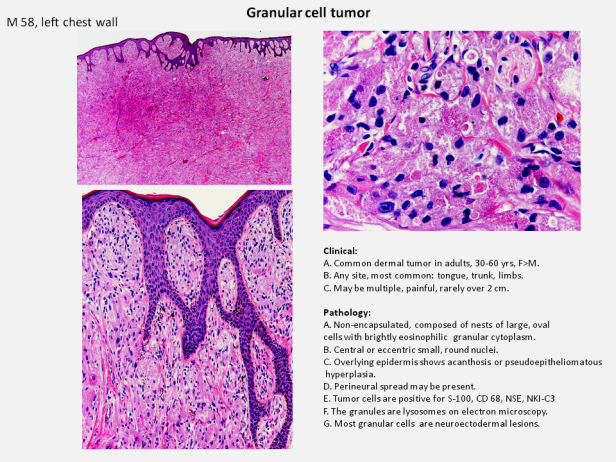 Quick dx. Granular cell tumor