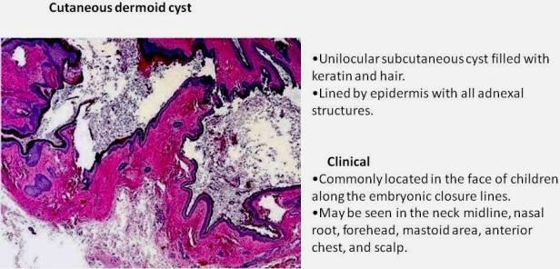 Quick dx. Cutaneous dermoid cyst