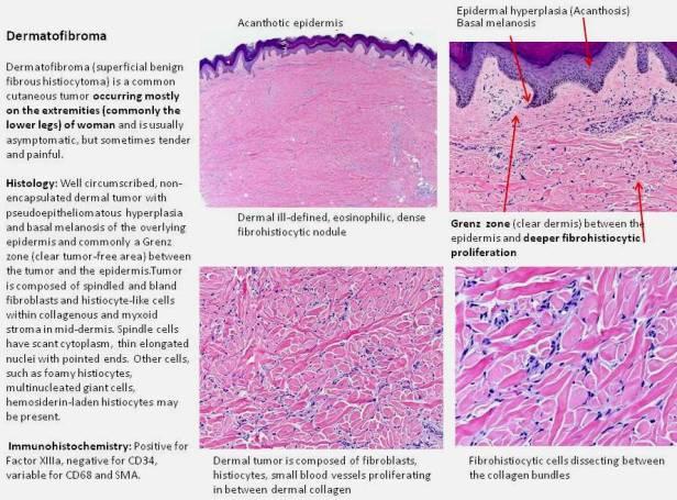 Quick dx. Dermatofibroma